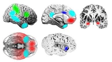 脳ネットワーク