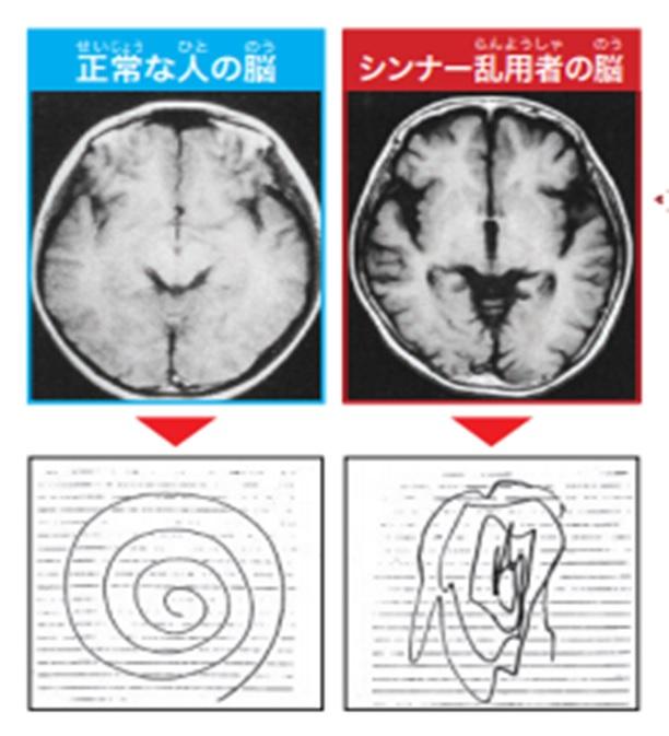 正常な人の脳とシンナーを使った人の脳