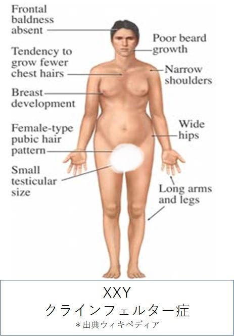クラインフェルター症